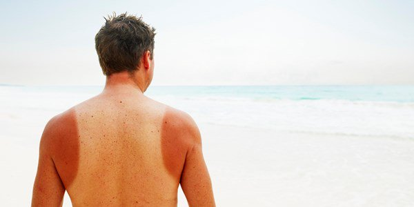 Man with sun burn standing near water on tropical beach rear view