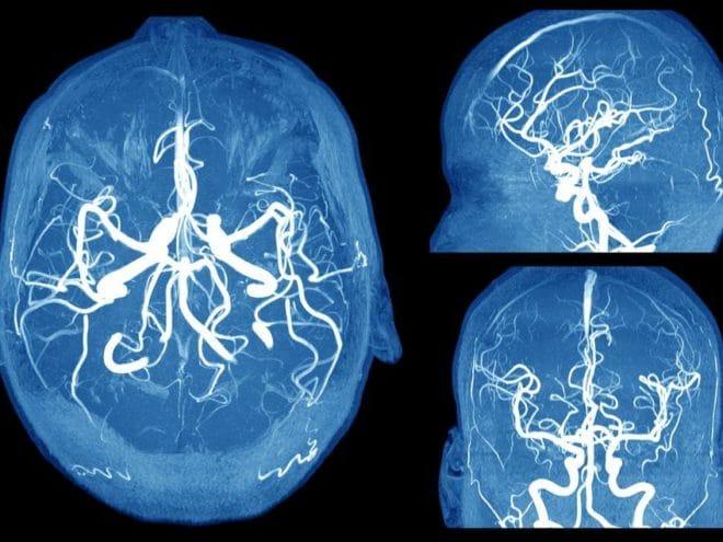 shutterstock_297202649-brain-aneurysm-akesak
