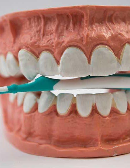 TeethMain