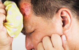 signs-headache-isnt-normal-hit-your-head