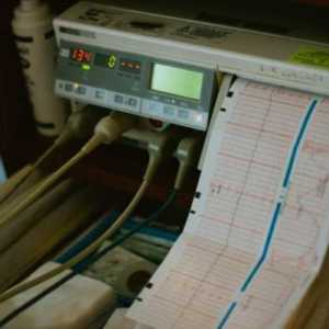 a hospital machine printing out paper that monitors a oersons heart rate